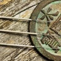 Nervebetændelse kan behandles med akupunktur