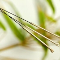 Prøv akupunktur mod nervebetændelse
